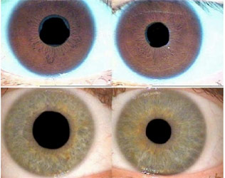What to Know about Eye and Pupil PERRLA Assessment