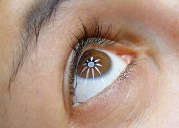 PERRLA Eyes