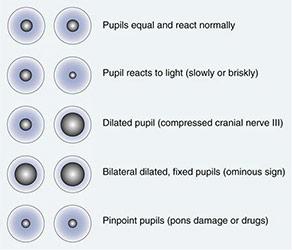 Process of Perrla Nursing