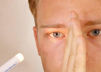 Important Matters of Pupillary Examination