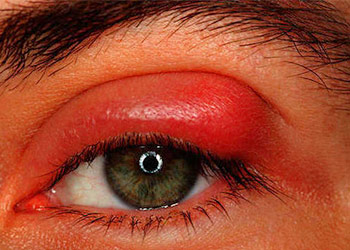 How to Get Rid of a Stye on Your Eye in 2 Steps