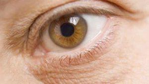 How to Undilate Eyes in Healthy Ways