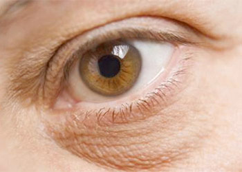 How to Undilate Eyes in Healthy Ways