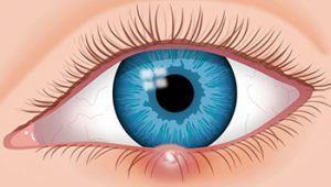 Stye In Your Eye: Types and Treatment