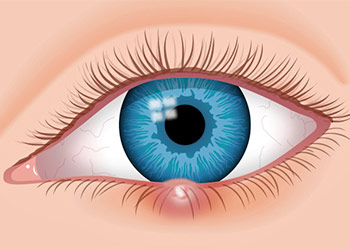 Stye In Your Eye Types and Treatment