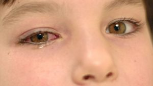 Watery Eye Toddler: About Pinkeye