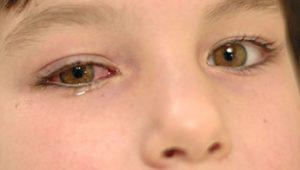 Watery Eye Toddler: About Pinkeye