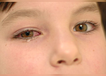 Watery Eye Toddler About Pinkeye