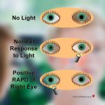 Eye See What You Did There: A Pupil's Response to Light